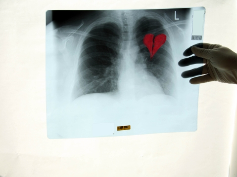 X-Ray showing a broken heart